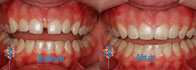 6 Month Smiles Case 3