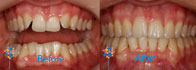 6 Month Smiles Case 7